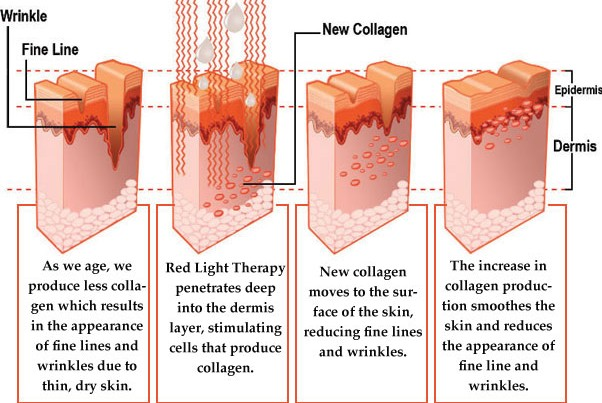 total body enhancement red light therapy reviews
